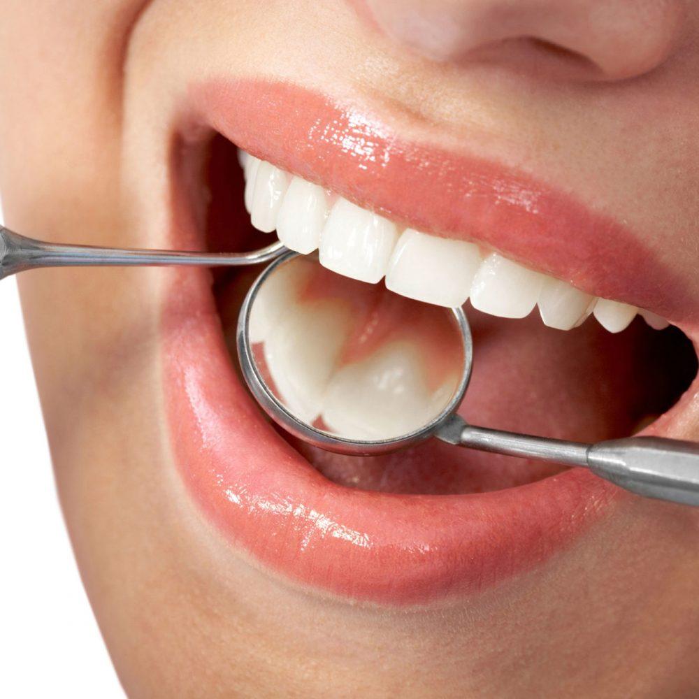 Restorative-Dentistry-2
